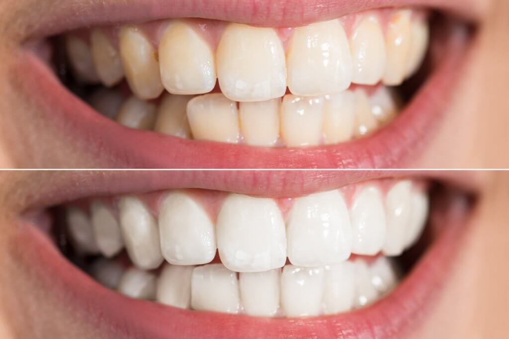 Teeth whitening, image of teeth before and after whitening