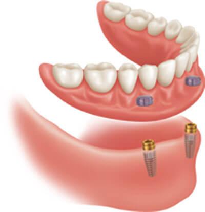 New Teeth On 4 Dental Implants