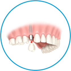 Dental Implants, implant bridges
