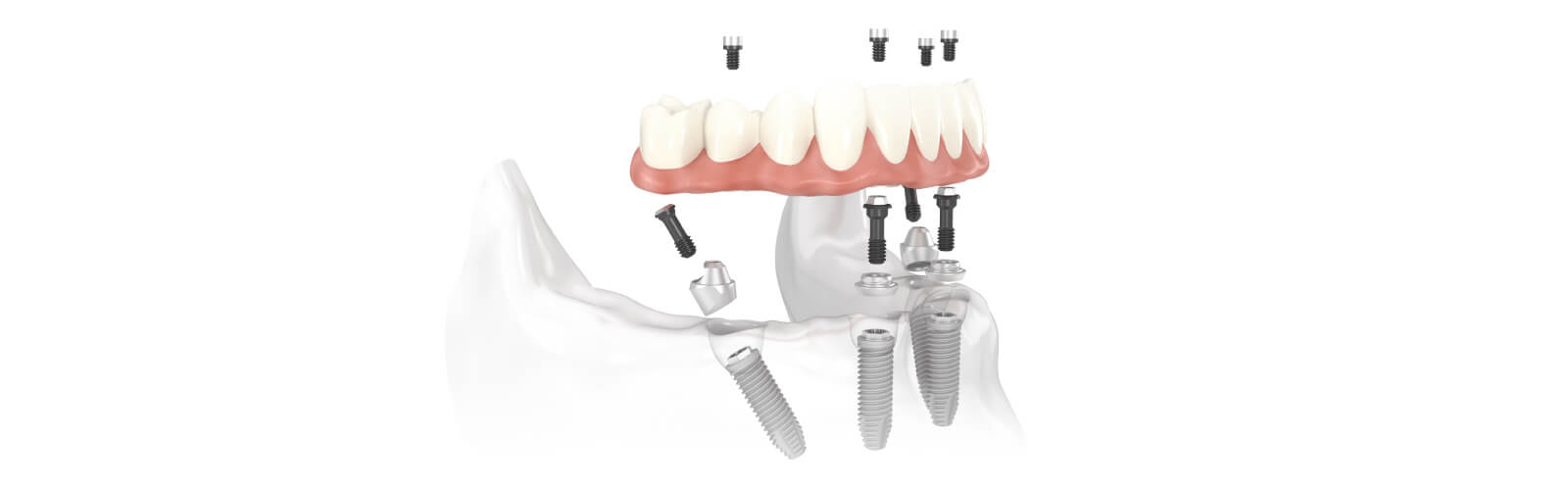 New-teeth-on-4: revolutionary teeth replacement giving you a new designer smile