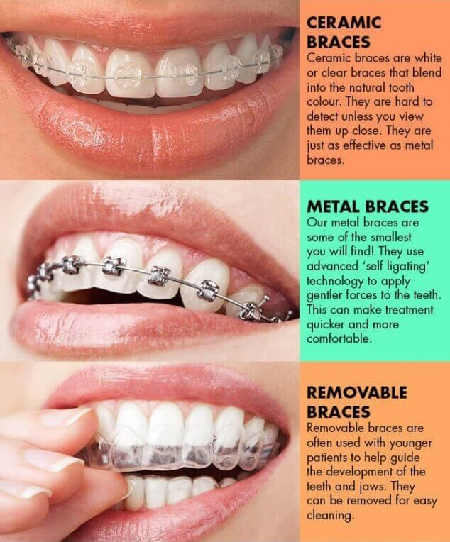 orthodontics for adults, different types of braces