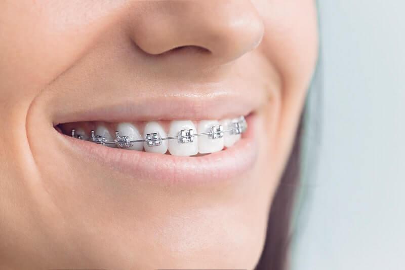 Orthodontics During COVID-19, braces, smiling