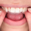 DIY teeth straightening, DIY clear aligners