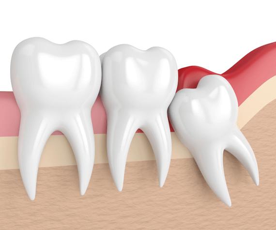 Wisdom teeth FAQs, cartoon wisdom tooth