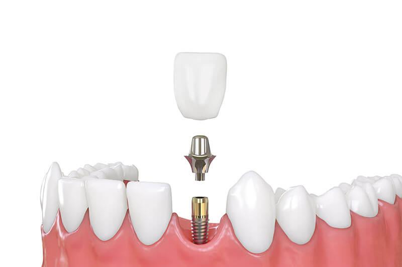 Dental implants versus bridges, tooth implant