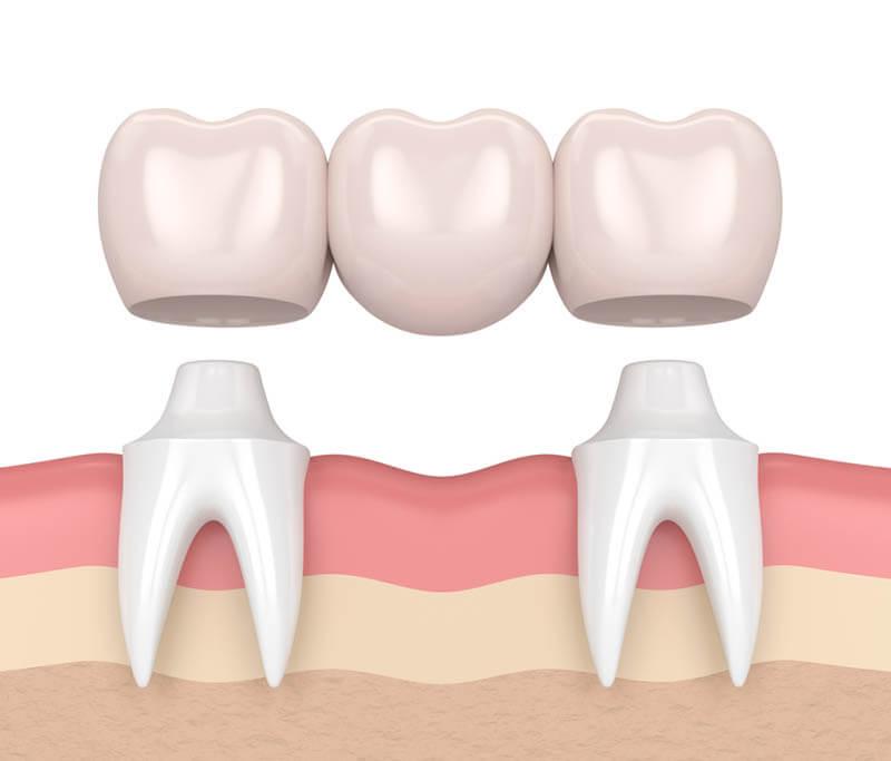Dental implants versus bridges, dental bridges, tooth bridge
