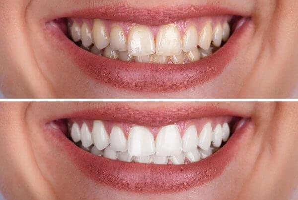 how long does teeth whitening last