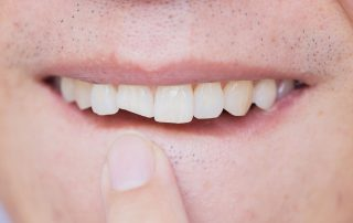 Dental emergency, chipped tooth