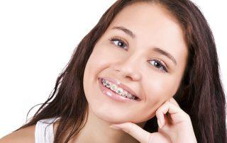 Covid orthodontic delays, braces